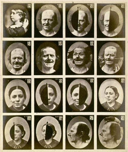 Expresiones faciales. Duchenne de Boulogne. Fotografías