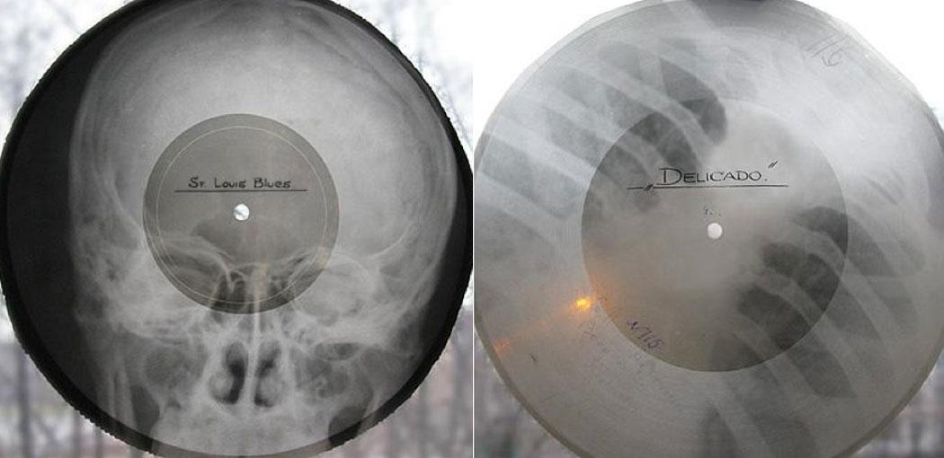 Comunismo, discos de rayos X y música
