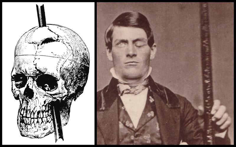 El cráneo de Phineas Gage